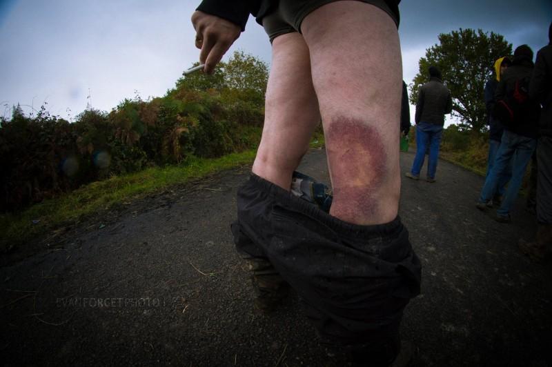 Exemple de blessure au LBD