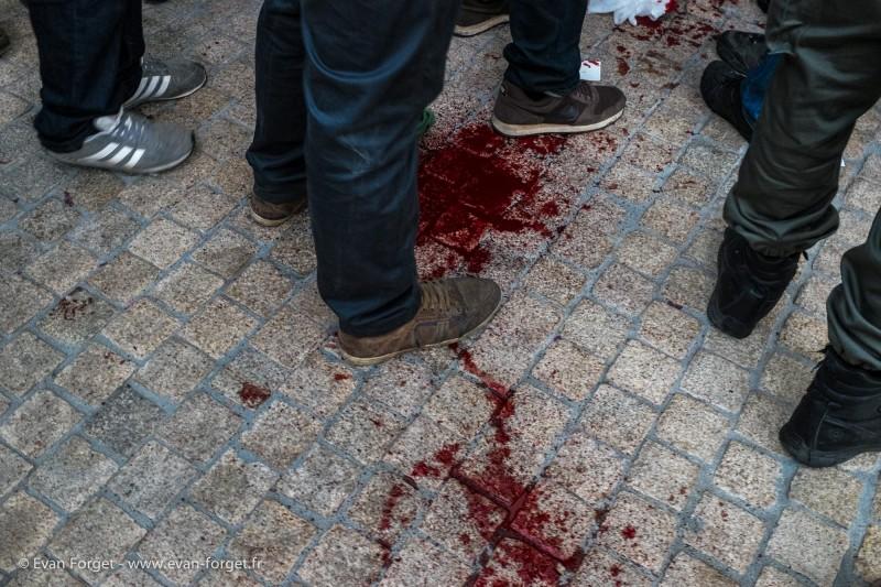 Nez arraché lors d'un tir / Nantes 2014